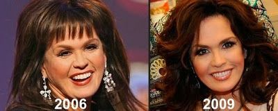 Marie Osmond Plastic Surgery - Before & After Pictures 2016