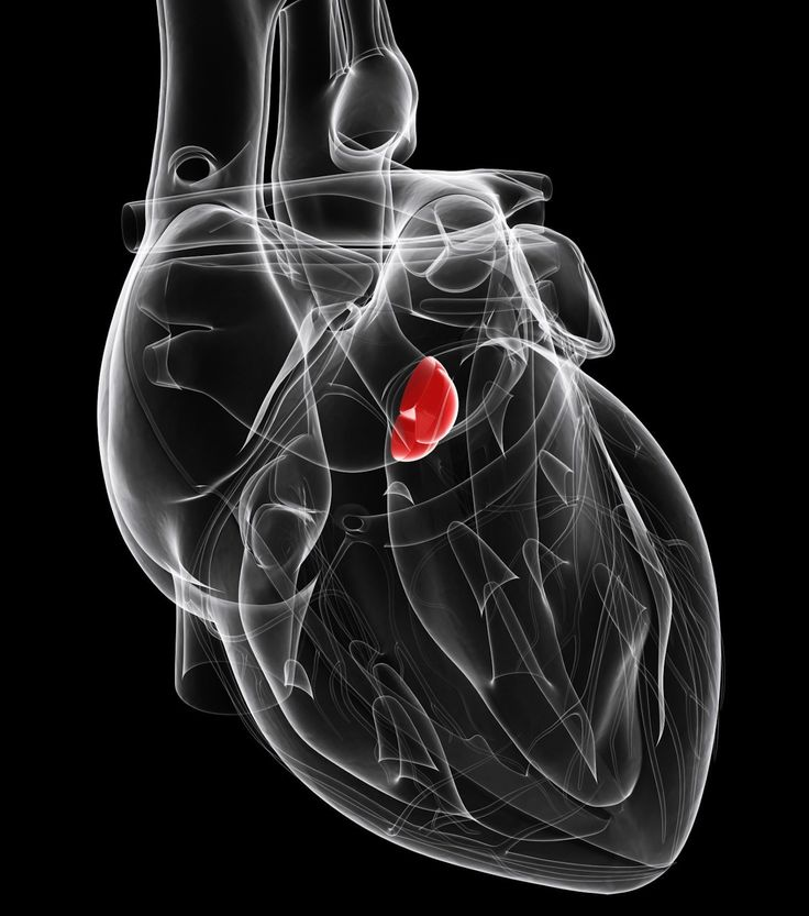 Caused by obstruction in the aortic valve, ortic stenosis leads to heart failure and other problems. It is usually treated with valve replacement.