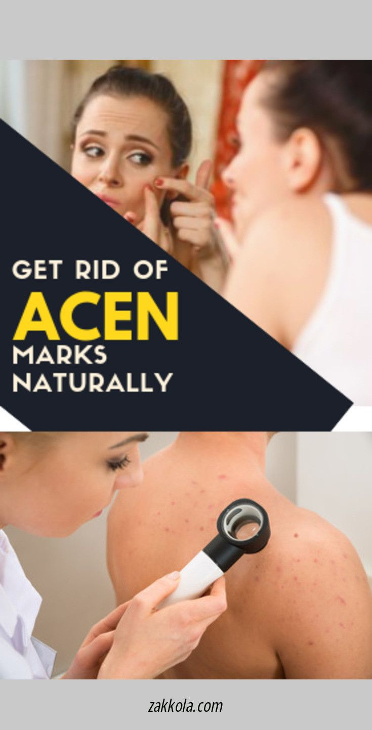 Whether you woke up with a large pimple or are exp…