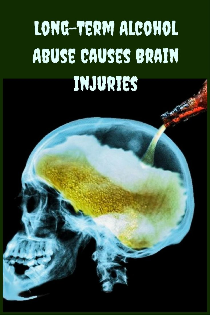Study Shows Long-Term Alcohol Abuse Causes Brain Injuries. A recent study has shown that long-term alcohol abuse can severely damage the outer lining of the brain. The injured layer is the cerebral cortex and is involved in all processes of higher level reasoning and in the processing of emotions. The researchers used advanced nuclear magnetic resonance imaging to evaluate the brain of 65 adults. About half were alcoholics who had stopped drinking. The rest had never been alcoholics.