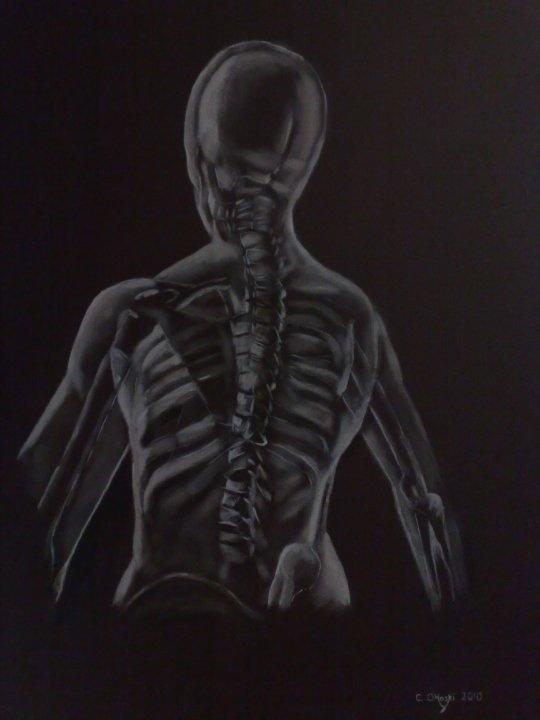 """Necrovitreus""  24"" X 30""  Acrylic On Canvas    Christopher O'Hoski  www.facebook.com/christopherohoski"