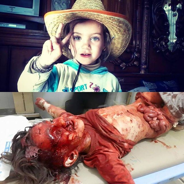"""Syrian Arab Muslim Girl Before & After (Picture; Suuriyaa, `Shaam, Halab) #Aleppo #Russia #Shiiah #USA #Secular #Terrorist ________________________________ ❝& what is [the matter] with you that you fight not in the cause of Allah & [for] the oppressed among men, women, & children who say, """"Our Lord, take us out of this city of oppressive people & appoint for us from Yourself a protector & appoint for us from Yourself a helper?""""❞ -Allah ﷻ (Translation Qur'aan 4:75) #Quote #Islam"""