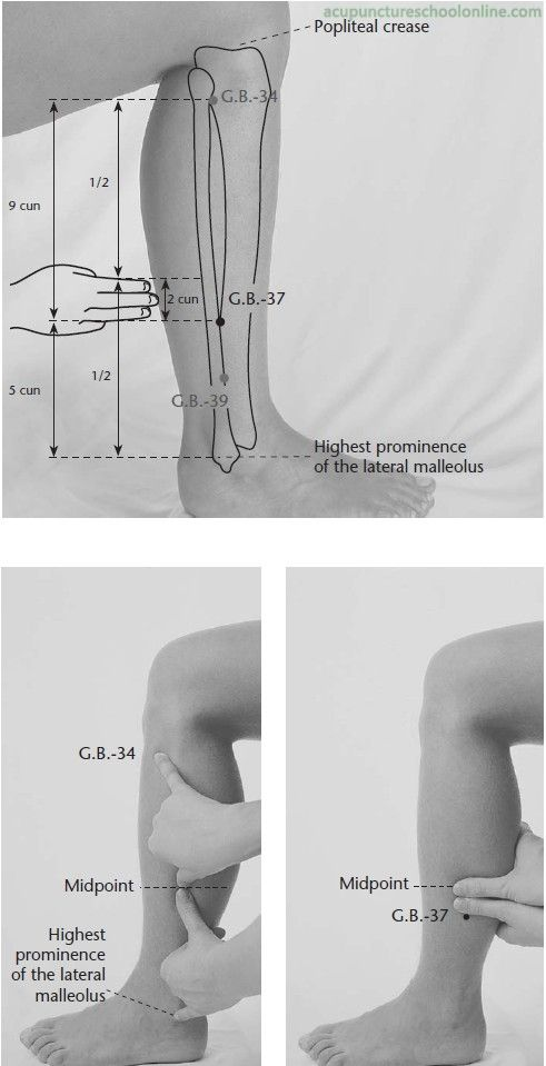 If a headache or migraine arises from too much Liver fire, massage acupuncture point GB34. This is a liver gall bladder fire point.... This point helps counter flow qi when the liver is attacking the spleen, due to too much liver heat.