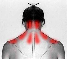 How To Treat  And Cure Stiff Neck Or Shoulder To Ease The Pain. This is amazing!