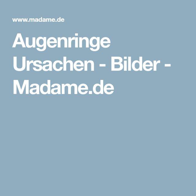 Augenringe Ursachen - Bilder - Madame.de