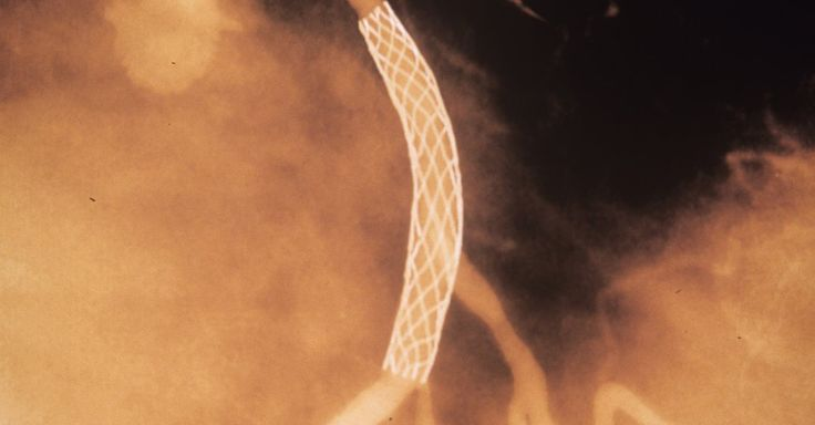 'Unbelievable': Heart Stents Fail to Ease Chest Pain
