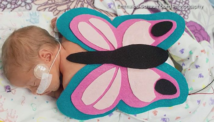 Volunteers from the March of Dimes put Halloween costumes on hospitalized babies, and photographers donated their talents to take pictures for the families as part of an early Halloween celebration.