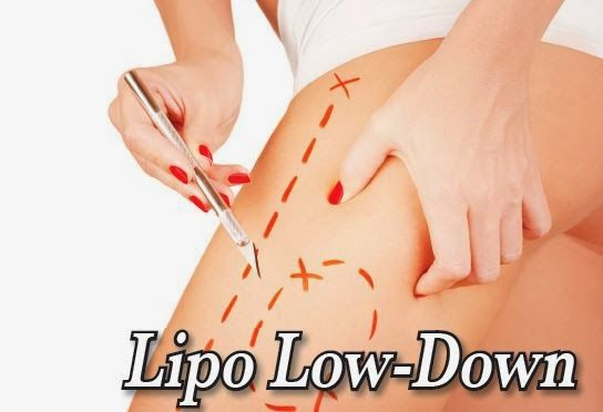 Lipo Low Down: What Are Your Options?