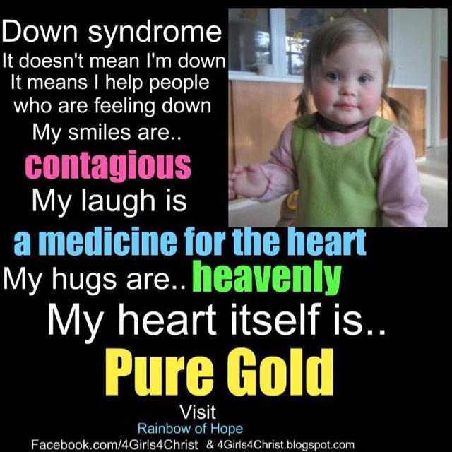 Down syndrome is beautiful!: Extra Special, T21 Angel, 3 Downsyndrome, Ds Inspiration, Down Syndrome Awareness, Syndrome I Support, Beautiful People, Inspiration Posters, Syndrome Inspiration