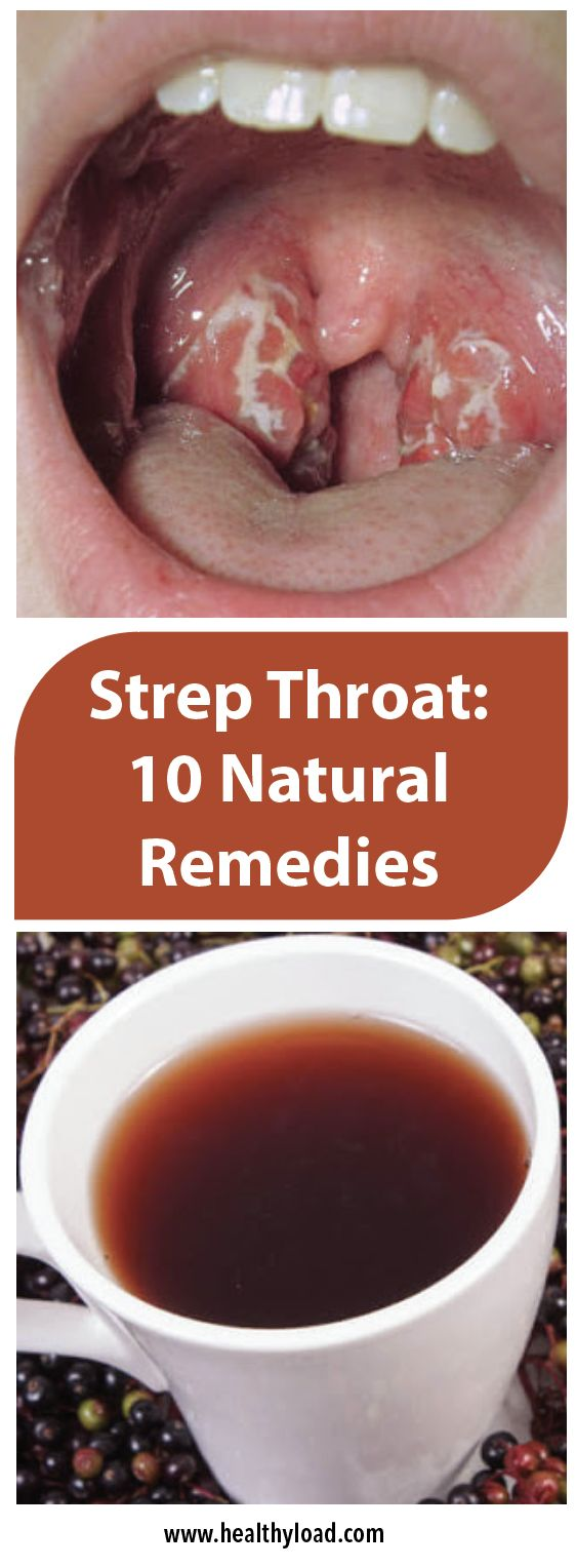 The pain due to a strep throat, a bacterial infection that causes pain and swelling of the throat, is extremely intense and uncomfortable. If left untreated, this infection might cause other issues, like kidney inflammation or rheumatic fever. Strep throat is a result of the Streptococcus pyogenes or group A streptococcus bacteria, which are extremely …