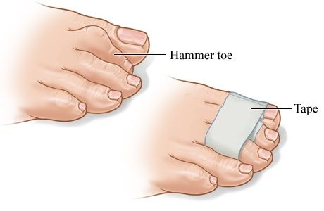 A wrapped hammer toe http://www.kazmerfootandanklecenters.com/services/hammer-toes