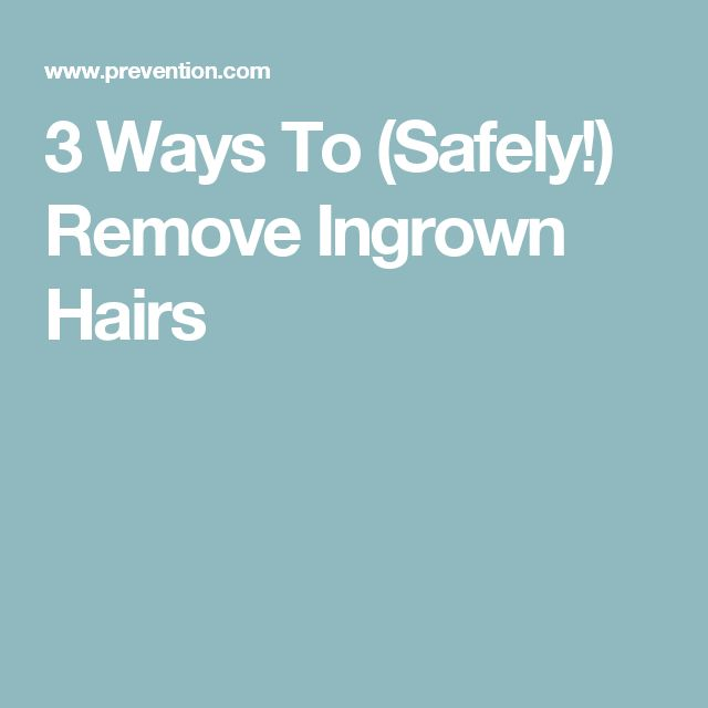 3 Ways To (Safely!) Remove Ingrown Hairs