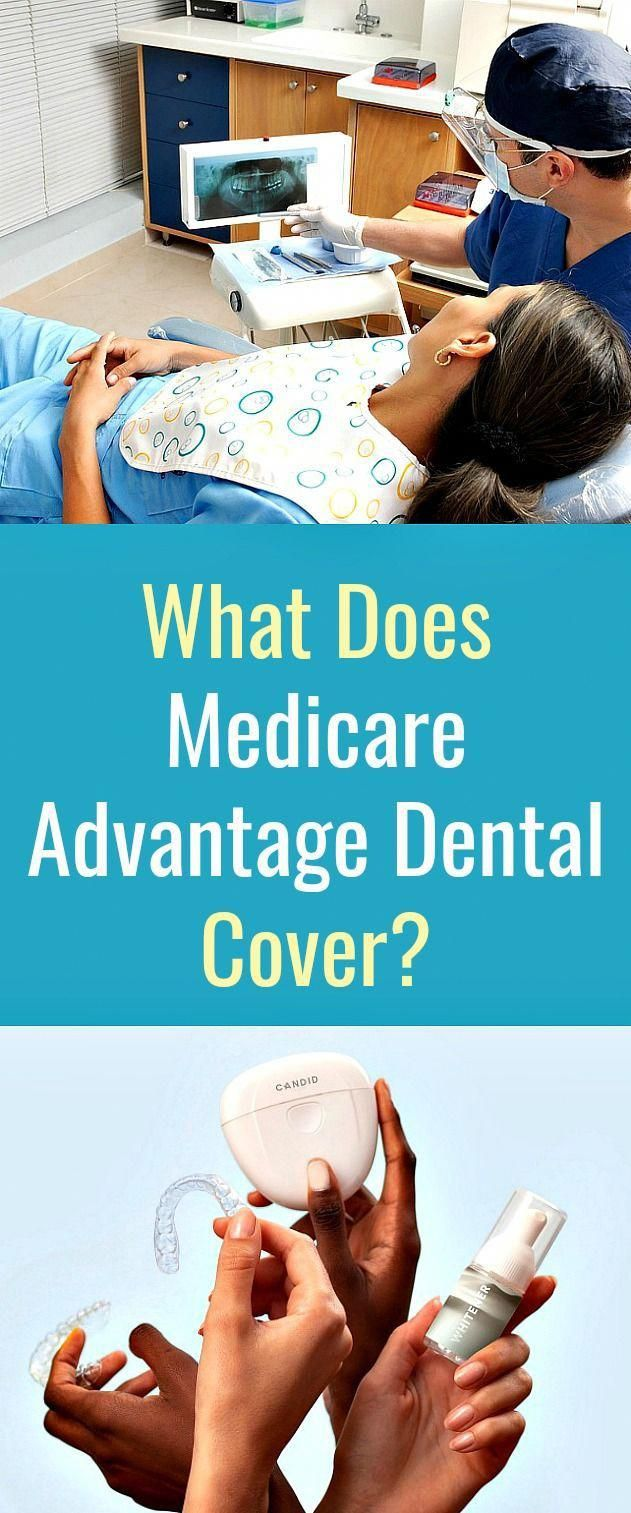What Does Medicare Advantage Dental Cover? in 2020