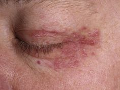Rashes near the mouth or on the face can be caused by various conditions. Sometimes they are the result of a condition called perioral dermatitis. Differentiation of mouth/face rashes is important because the treatments for allergic contact dermatitis, acne, rosacea, or eczema can make perioral dermatitis worse.