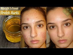 3 Day Challenge - This miracle oil can remove all the spots and scars on your skin - YouTube