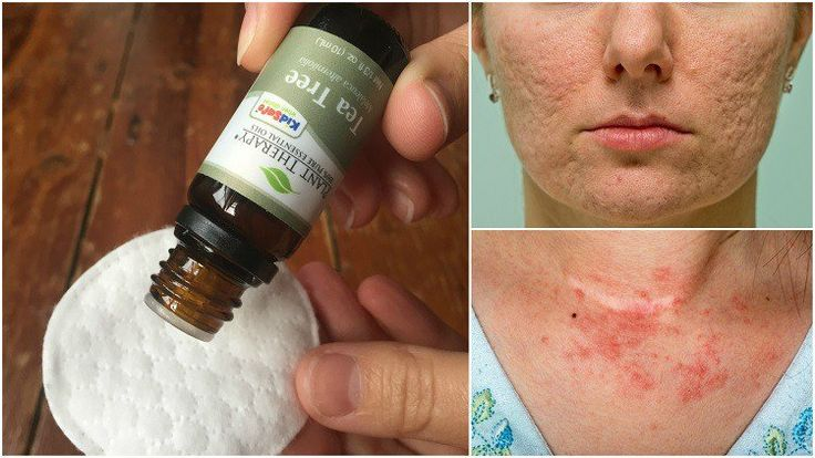 """Can We Send You Our Free Special Report: """"100 Ways To Use Essential Oils To Change Your Life""""?  Which Tea Tree Oil Is Best? Many lotions, creams and moisturizers contain a small dilution of tea tree oil, but for best results it is recommended you invest in a bottle of 100% pure tea tree oil, such as this bottle of Plant Therapy Tea Tree…   [read more]"""