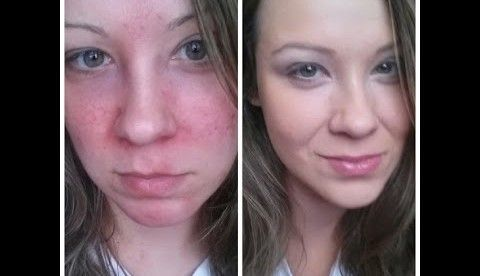 How to get rid of blotchy skin