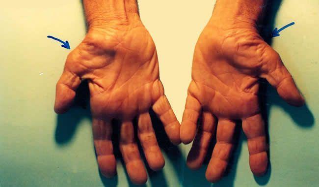 Syndróm karpálneho tunela: Ako sa účinne zbaviť bolesti?