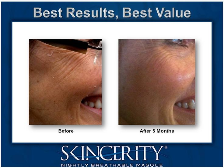 AMAZING RESULTS with Skincerity!