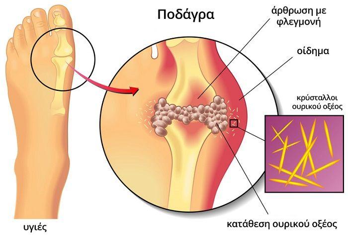 Ουρικό οξύ και φυσική αντιμετώπιση αποβάλλεται από τον οργανισμό. Σε ορισμένες περιπτώσεις δε λειτουργεί σωστά με αποτέλεσμα τα επίπεδά του στο αίμα να αυξά