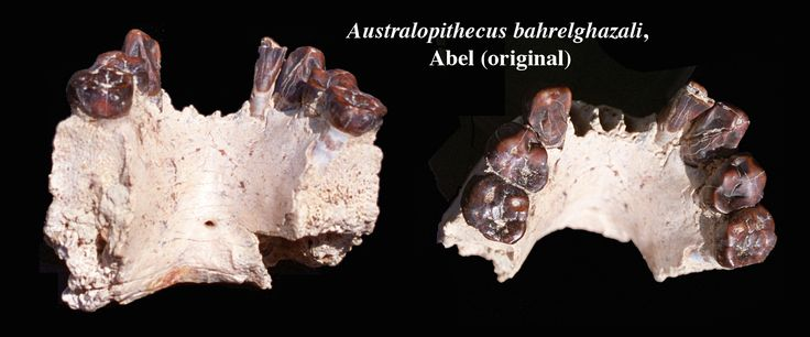 The wear facets of the teeth indicate the definitive teeth of a young adult. The horizontal striations visible at the base of the teeth are dysplasias due to a defect in enamel mineralization during tooth growth due to nutritional deficiency or disease. Abel would have had these problems at least twice as evidenced by the two canine dysplasias. Given the context, was Abel hungry during periods of drought? Radiography reveals a thick enamel, a human characteristic.