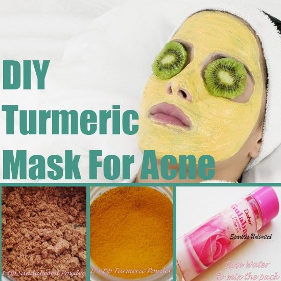 ... on Pinterest | Acne scars, Honey face mask and Pimple extractor