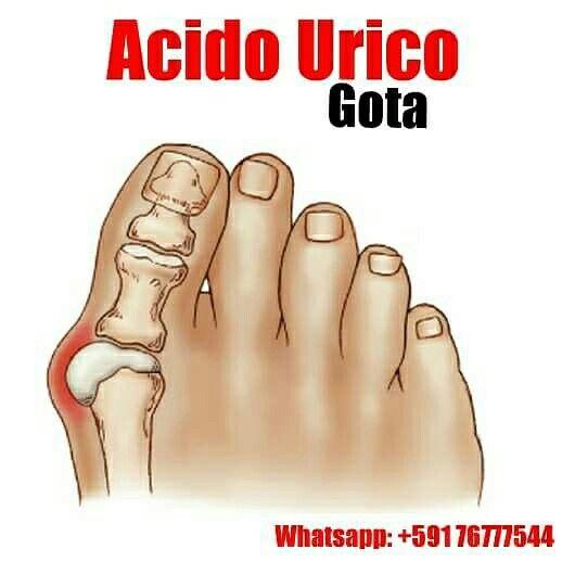 Las 25 mejores ideas sobre gota acido urico en pinterest cido rico remedios acido urico y - Alimentos ricos en purinas acido urico ...