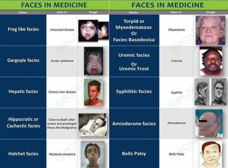 Guida alla semeiotica della facies - Seguici su nursetimes.org - Giornale di informazione sanitaria - #NurseTimes