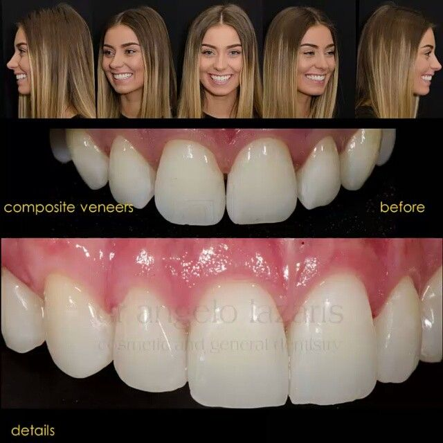 Danielle's smile transformation pt 2. Hand layered composite resin veneers that look naturally beautiful. #sydneycosmeticdentist #veneers #dentalveneers #smile #smiledesign #cosmeticdentist #cosmeticdentistry #lovemyjob #perfectsmile