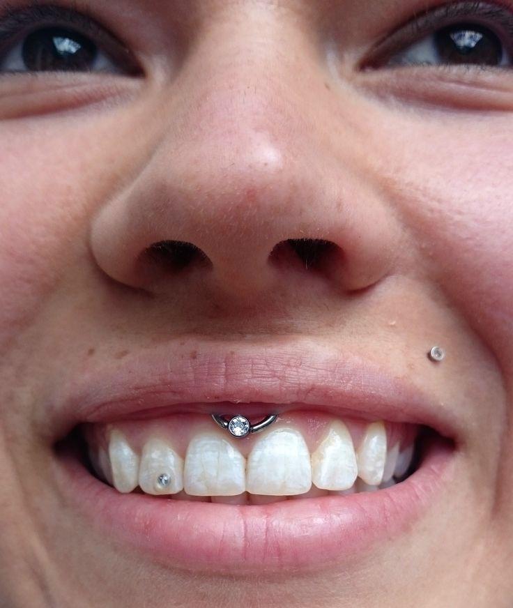#lippenbaendchen #lippenbändchen #smileypiercing #piercing #janeabsinth #livingillustrations #düsseldorf #tattoostudio #tattoo #bodypiercing #piercingstudio #piercer