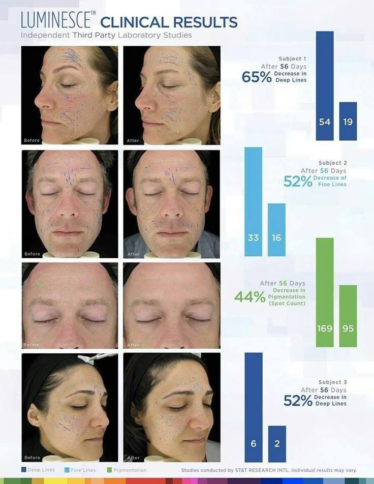 Amazing clinical results with Luminesce!!! www.nicholewalker.jeunesseglobal.com www.facebook.com/removeyears
