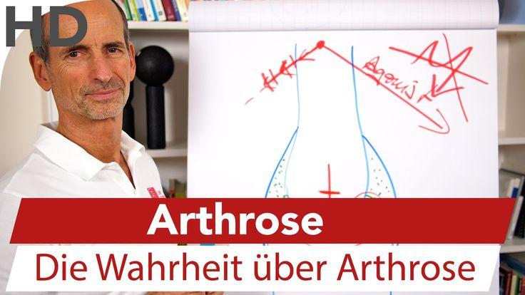 Arthrose // Die Wahrheit über Arthrose Schmerzspezialist Liebscher-Bracht