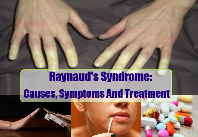 Health Care A to Z - https://www.healthcareatoz.com/raynauds-syndrome-causes-symptoms-and-treatment/