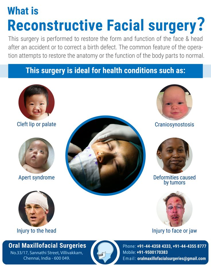 What is reconstructive facial surgery?                This surgery is performed to restore the forma and function of the face and head after accident or to correct a birth  defect.  Visit: http://www.oralmaxillofacialsurgeries.com/  #HeadandNeckOncology #ReconstructiveSurgeries #OrthognathicSurgeries #AestheticFacialSurgeries #oral #maxillofacial #oralmaxillofacial #maxillofacialsurgery #oralsurgery #bone #augmentation #BestTreatment #BestDoctor #FacialInjury #Trauma #Fracture #SkinTreatment…