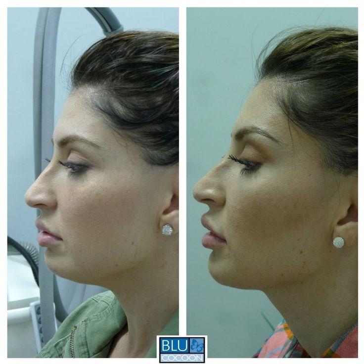 83 best Jaw Surgery images on Pinterest | Bristol, Celebrity plastic ...