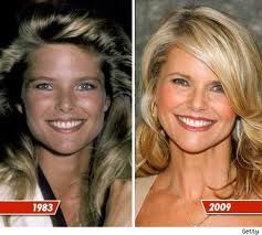 Fresh-faced Christie  Brinkley.  I would say she has aged the least.