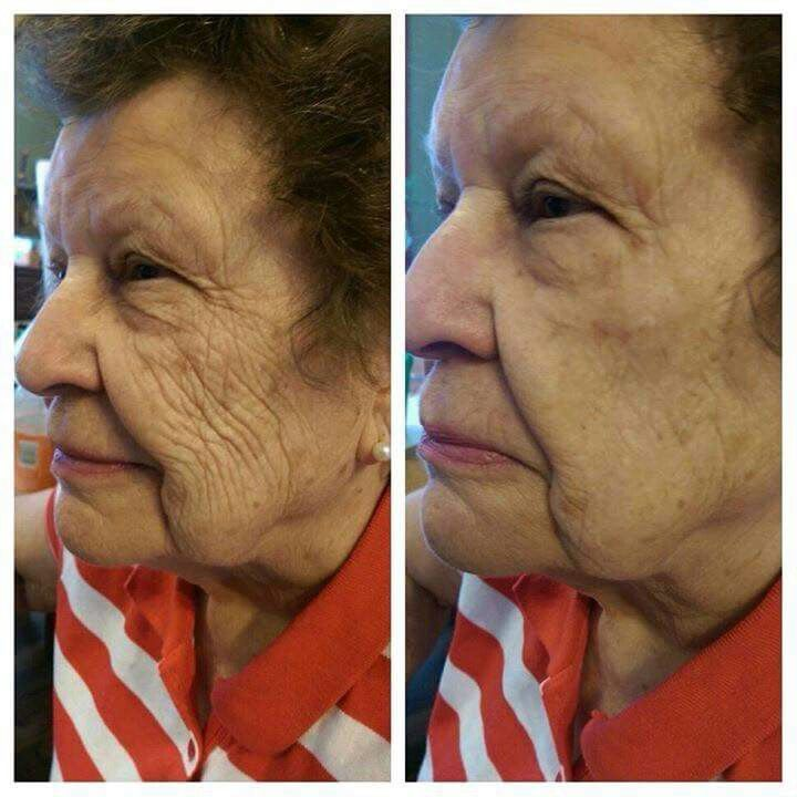 10 years younger in 2 minutes! Instantly Ageless