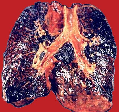 If this is not motivation I don't know what is!!!  Nicotine Smoking Lung    http://miamilasertherapy.com/