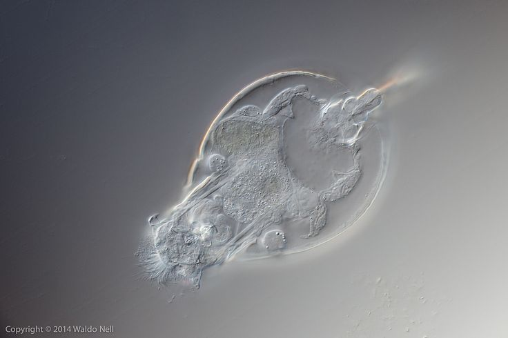 www.photomacrography.net :: View topic - Diatoms and rotifer
