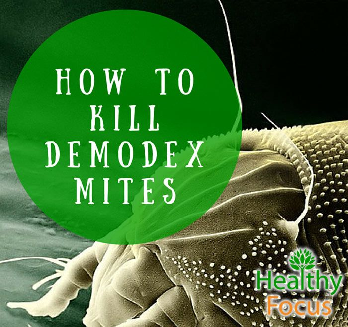 How To Kill Demodex Mites Oily Tea Tree Oil Remedies Rosacea