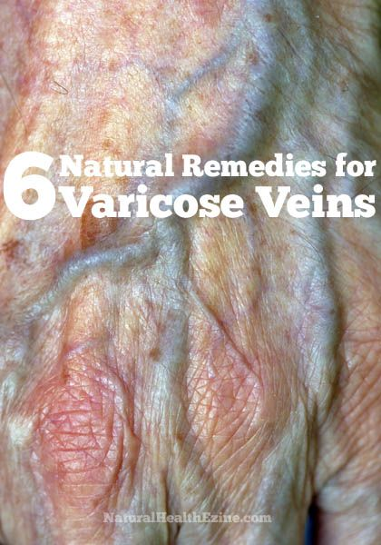 Many people believe that the only way to reduce the appearance of varicose veins is to visit a physician, which can be costly and also painful. However, there are actually natural remedies for varicose veins that will improve the appearance of varicose veins from the comfort of your home. These natural remedies fall into one …