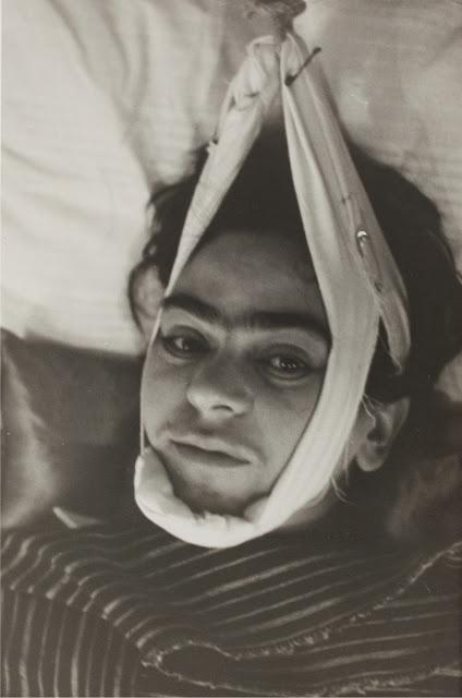 Frida in traction, 1940, Author: Nickolas Muray