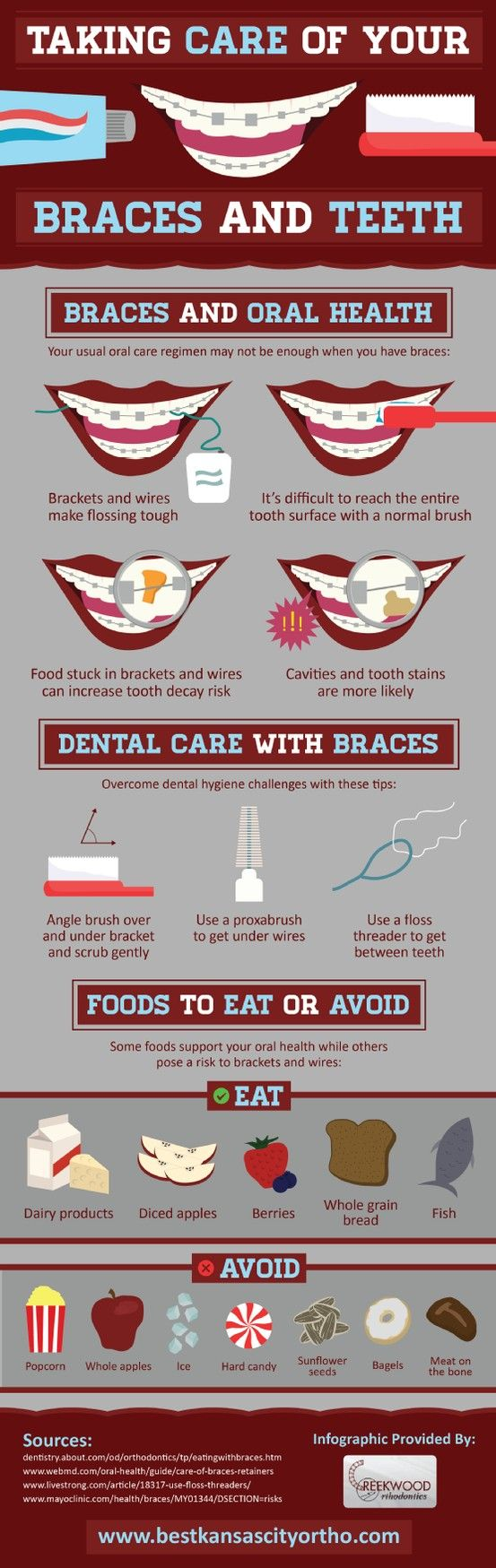 Taking Care of your Braces and Teeth