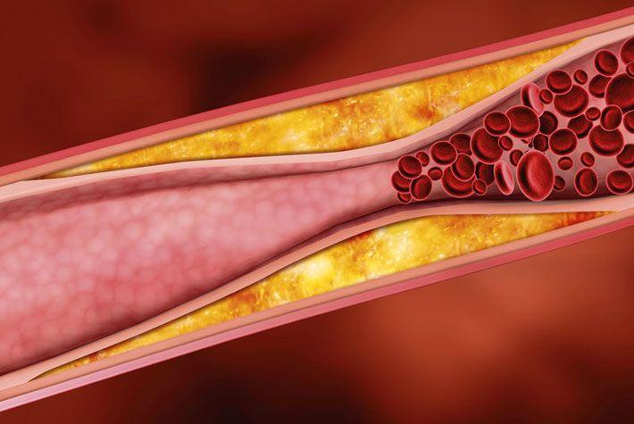 Arterie intasate: erbe per aiutare a ripulire i vasi sanguigni: Aglio; Gugul; Biancospino; Epimedium; Curcuma; Mirtillo; Zenzero; Per saperne di più >>> http://www.piuvivi.com/salute/arterie-intasate-aterosclerosi-erbe-ripulire-vasi-sanguigni.html <<<