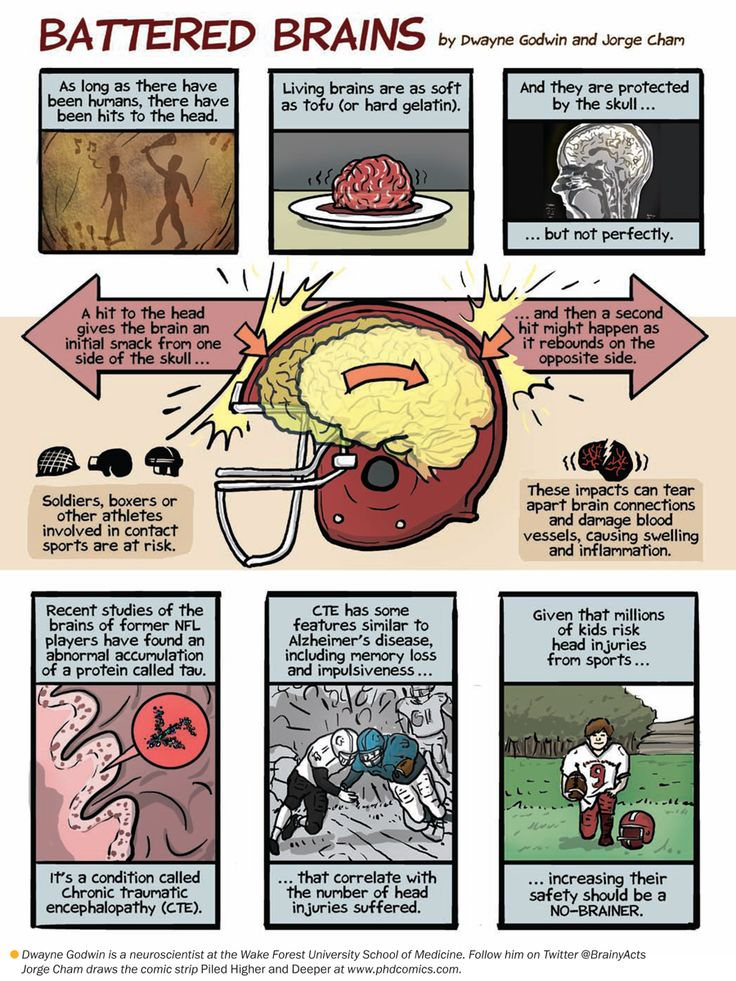 How Head Injuries Damage the Brain: Scientific American #brain #childinjuries