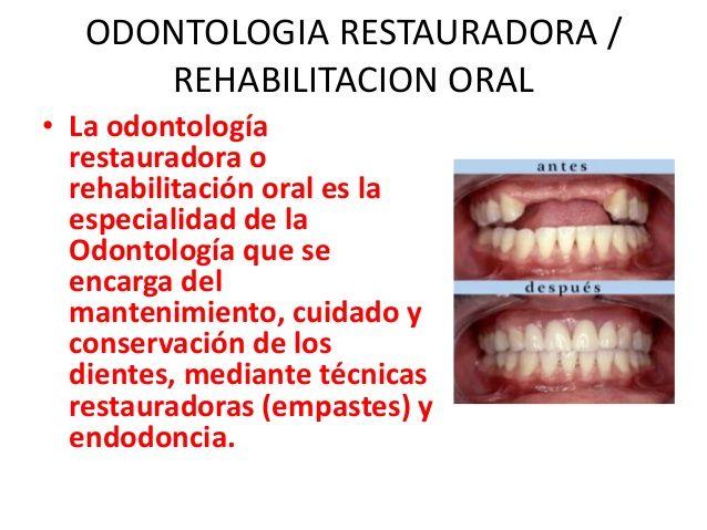 ODONTOLOGIA RESTAURADORA /REHABILITACION ORAL• La odontologíarestauradora orehabilitación oral es laespecialidad de laOdon...