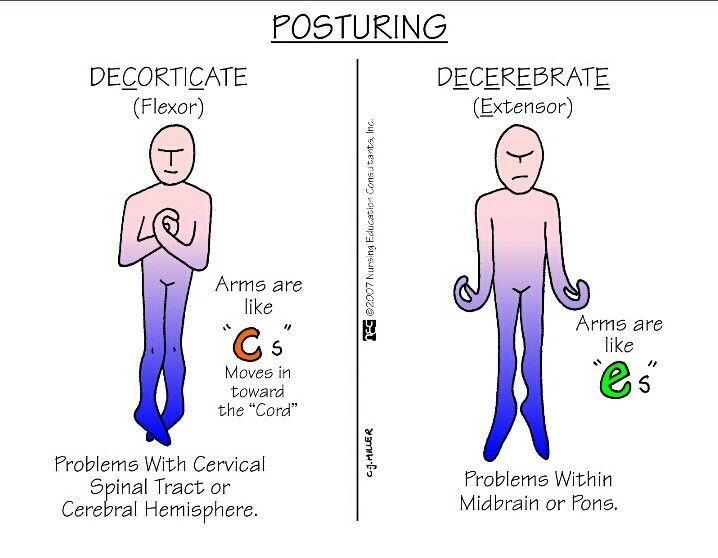 decorticate vs decerebrate positioning in head injuries