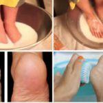 Não desperdice seu dinheiro em Pedicure: com Apenas dois ingredientes de sua cozinha pode fazer seus pés ficar surpreendente!