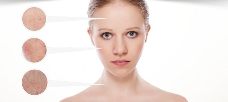 Rosacea is a disease which causes redness of the face. There are medications