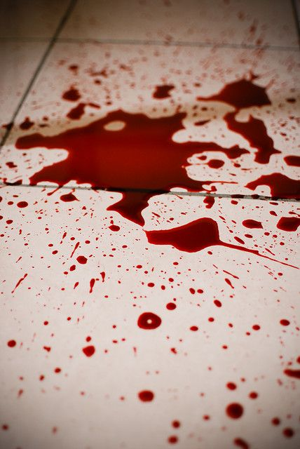 A Bloody Mess by GBirdie, via Flickr